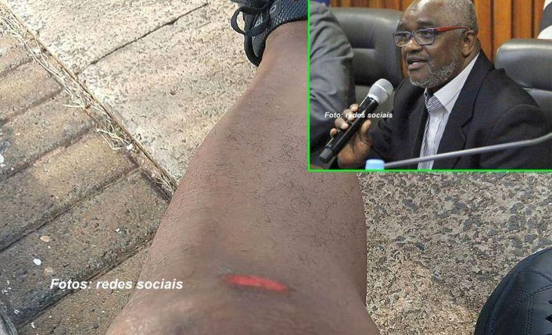 O professor da Unesp foi agredido a golpes de canivete