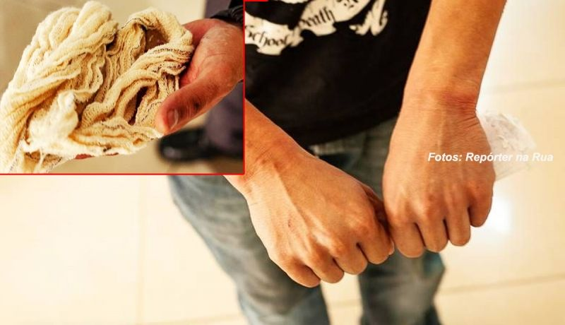 Rapaz mostrou as mãos que estavam amarradas por ataduras.