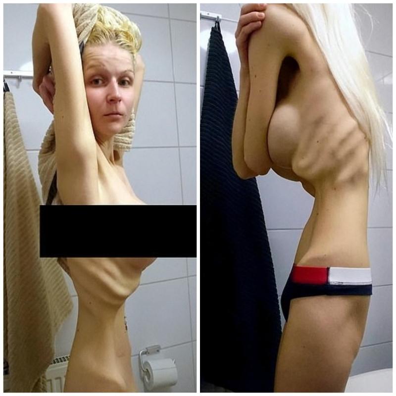 Mulher que chegou a pesar 35 kg fala de luta contra anorexia