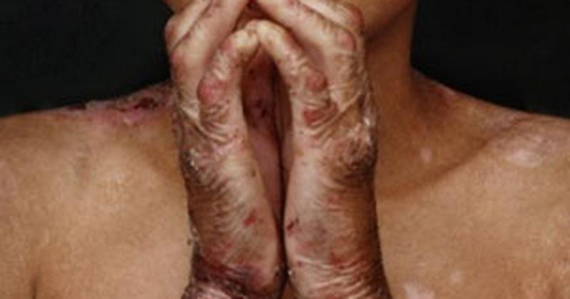 Pacientes com epidermólise bolhosa terão protocolo de cuidados
