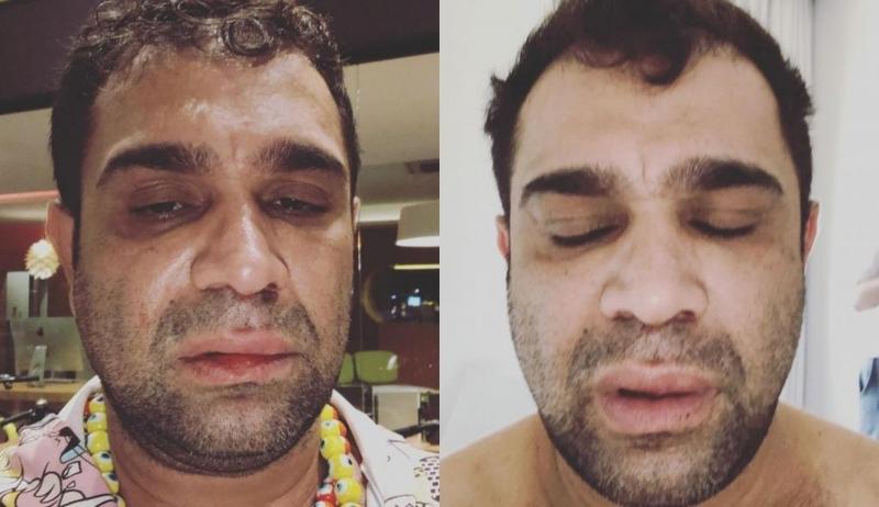 Humorista pede indenização de R$ 60 mil por agressão em Marília