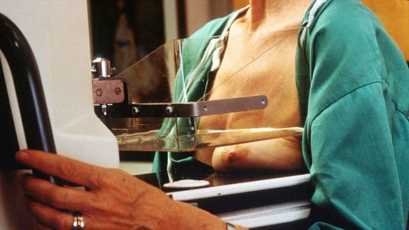 Mamografia é a melhor forma de salvar vidas